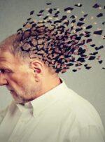 برای آلزایمر چه دکتری باید رفت؟